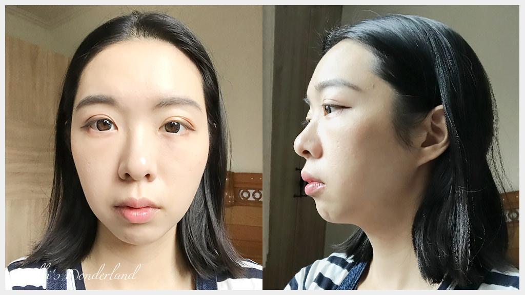 韓國第三代海芙音波